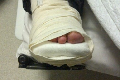 8123395457_2cd1a2745b_accident-injury