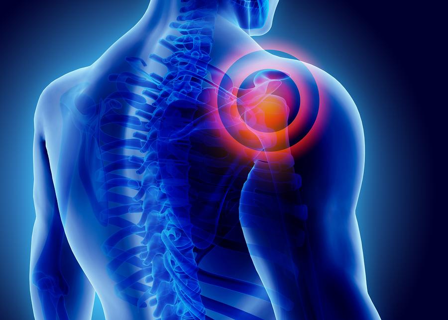 Unfallversicherung: Unfallbedingtheit einer Rotatorenmanschettenläsion