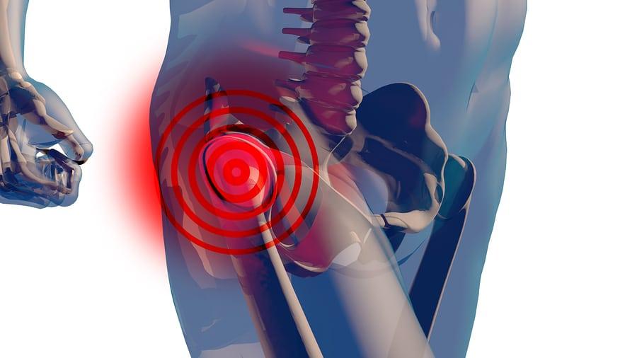 Unfallversicherung: Hüftkopfnekrose durch Unfall