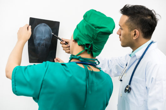Unfallversicherung – Augenverletzung - Berücksichtigung eines Augenvorschadens