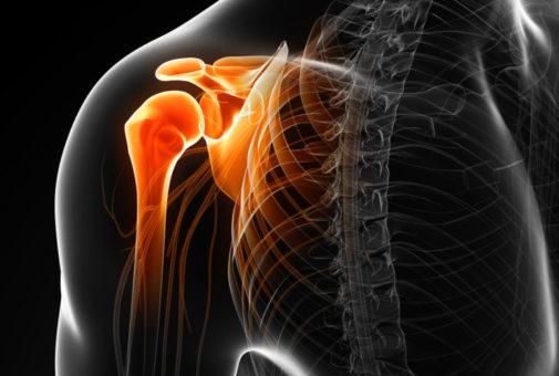 Unfallversicherung - Invalidität bei einer Rotatorenmanschettenruptur