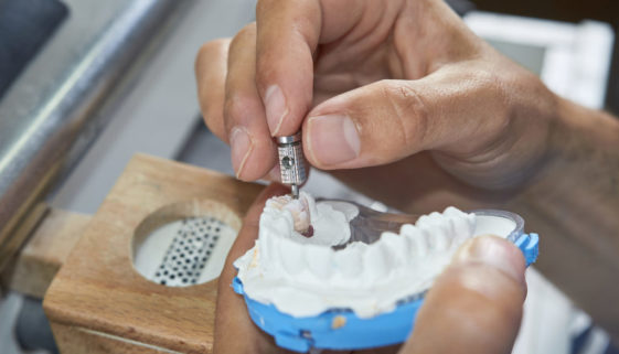 Krankenversicherung – Anspruch auf Behandlung mit Keramikimplantaten