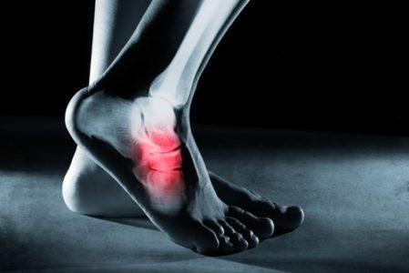 Unfallversicherung - Versteifung des Fußgelenks aber noch verbleibenden Restfunktionen des Fußes