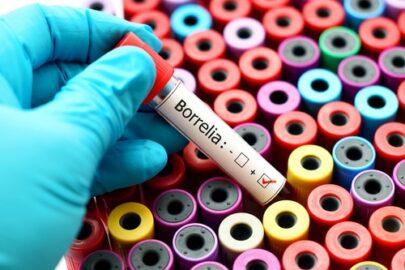 Unfallversicherung - chronische manifestierte Borrelieninfektion