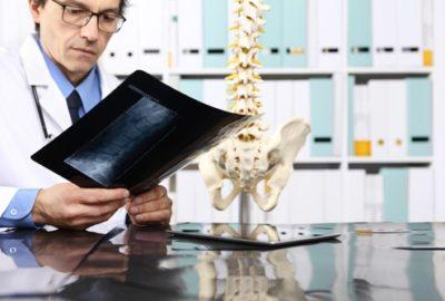 Unfallversicherung - Wirksamkeit eines Risikoausschlusses von Bandscheibenschäden