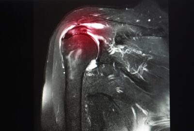 Rupture of the supraspinatus tendon