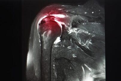 Rupture of the supraspinatus tendon