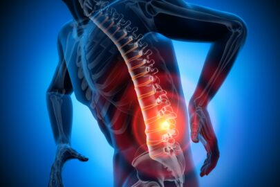 Unfallversicherung – Begriff Kapsel an Gliedmaßen oder der Wirbelsäule