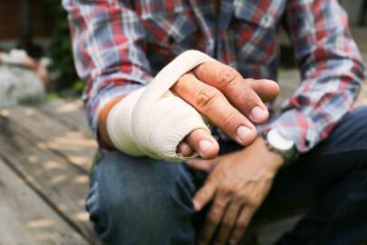 Unfallversicherung - Verletzungen an einer Hand – Gliedertaxe für Finger