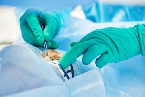 Katarakt-Operation - Verwendung eines Femtosekundenlasers